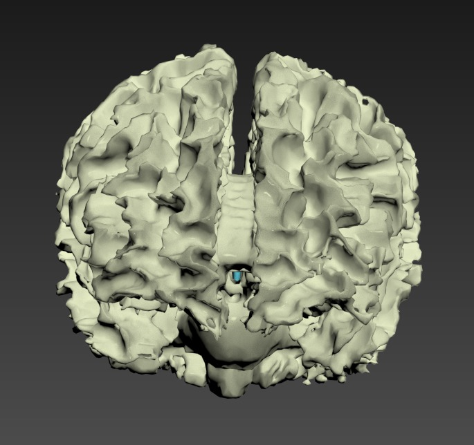 Thumbnail for Head-Brain-White-Matter-Tracts-Lateral-Ventricles
