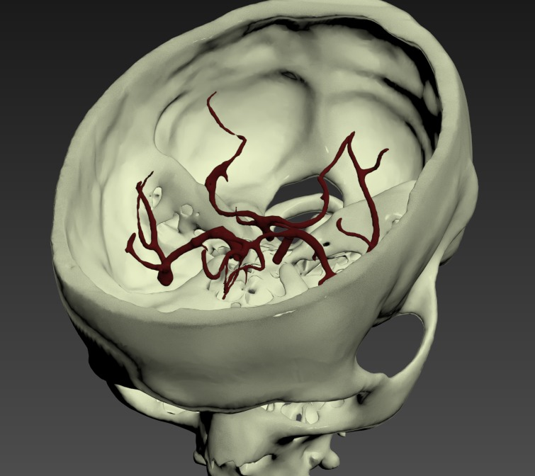 Thumbnail for Head-Middle-Cerebral-Artery-Aneurysm