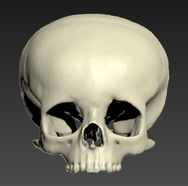 Thumbnail for Head-Pediatric-Facial-Bones