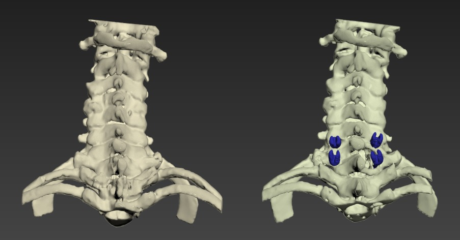 Thumbnail for Neck-Cervical-Spine-Surgery